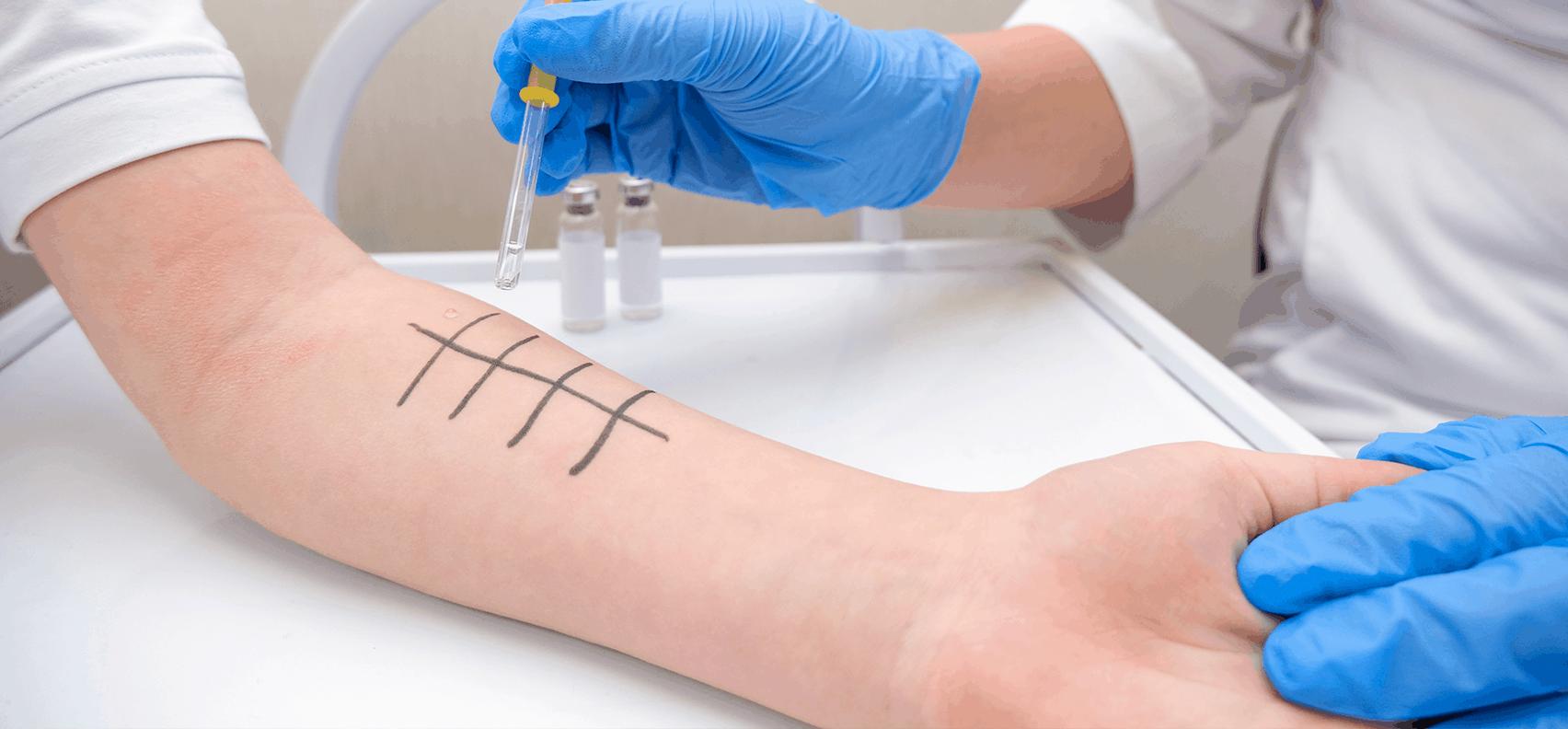 Allergy test to determine allergens causing symptoms